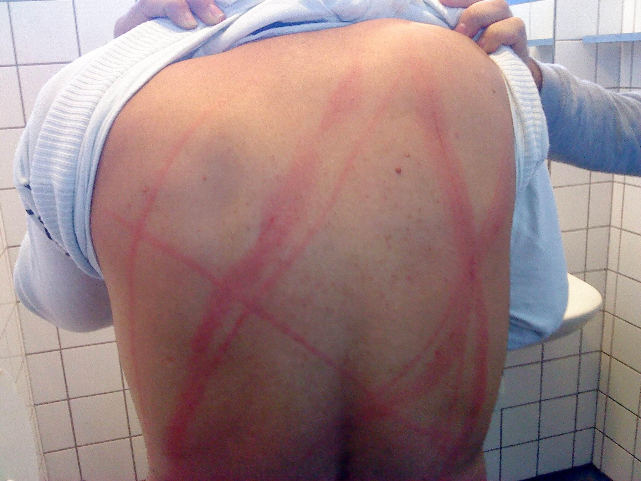 røde mærker på ryggen
